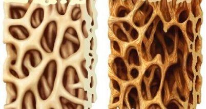Ce este osteoporoza
