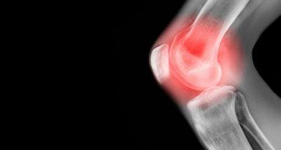 Durerile de genunchi