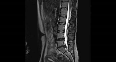 Osteofite cervicale