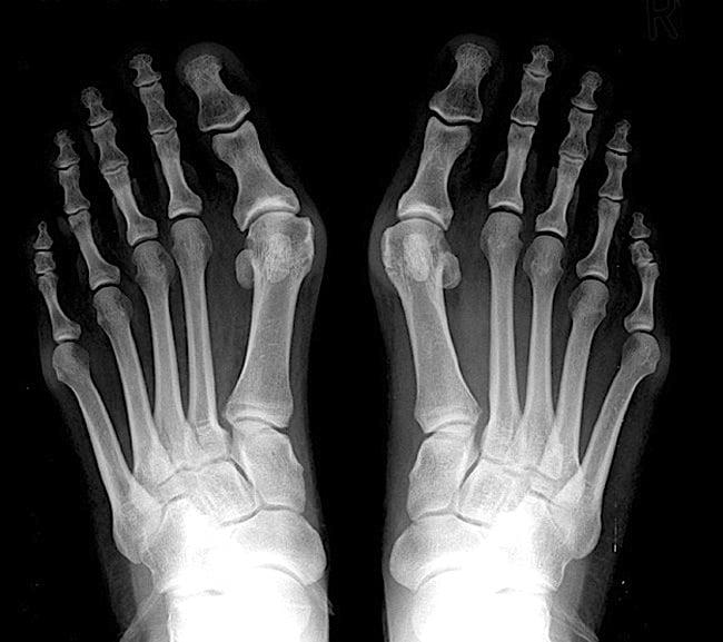 articulatie deget mare picior umflata)
