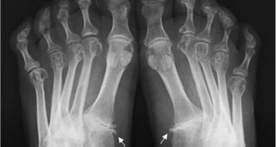 Poliartrita reumatoida idiopatica