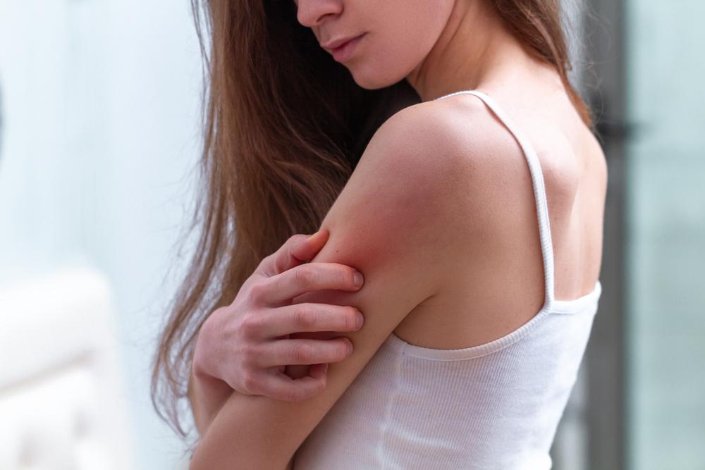 dermatita-seboreica-la-femei