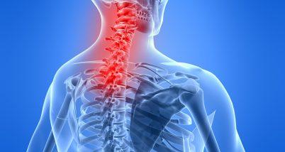 Discopatia vertebrala sau durerea de spate
