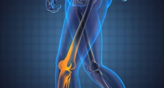 despre tratamentul articular artrita traumatică a simptomelor genunchiului