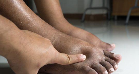 diabeticul si picioarele umflate