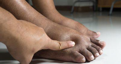 Diabetul si picioarele umflate pe timpul verii
