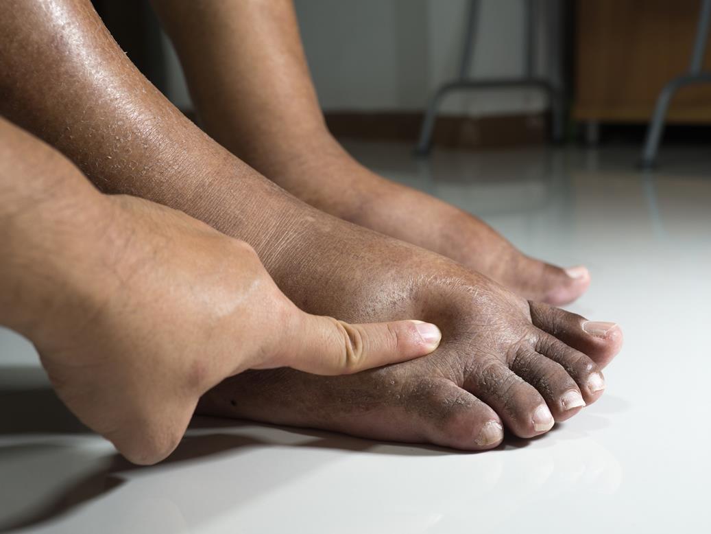 de ce am picioarele și picioarele umflate