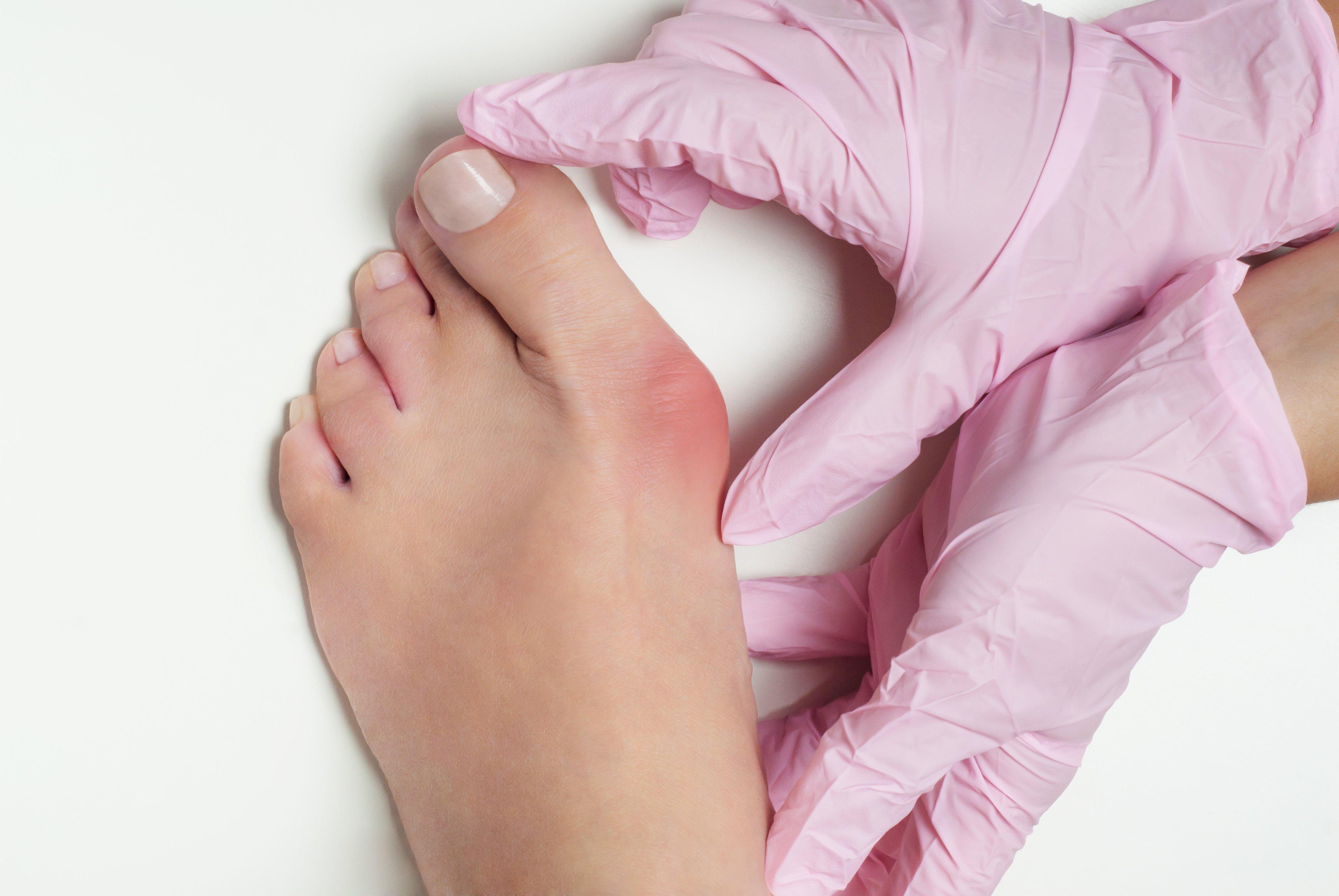 Traumatism deget mare picior