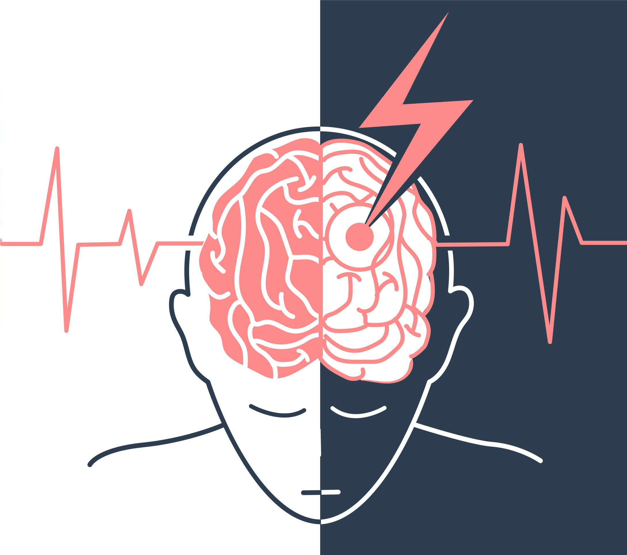 refacerea vederii după un accident vascular cerebral