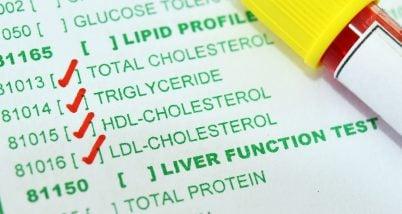 Cum influenteaza fumatul profilul lipidic