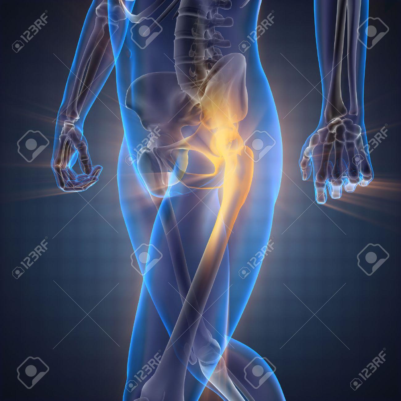 pierderea durerii osoase