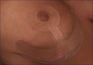 ScarFx Plasture siliconic cicatrice Ancora