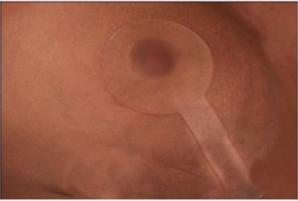 Scar Fx Plasture Lollipop siliconic cicatrice