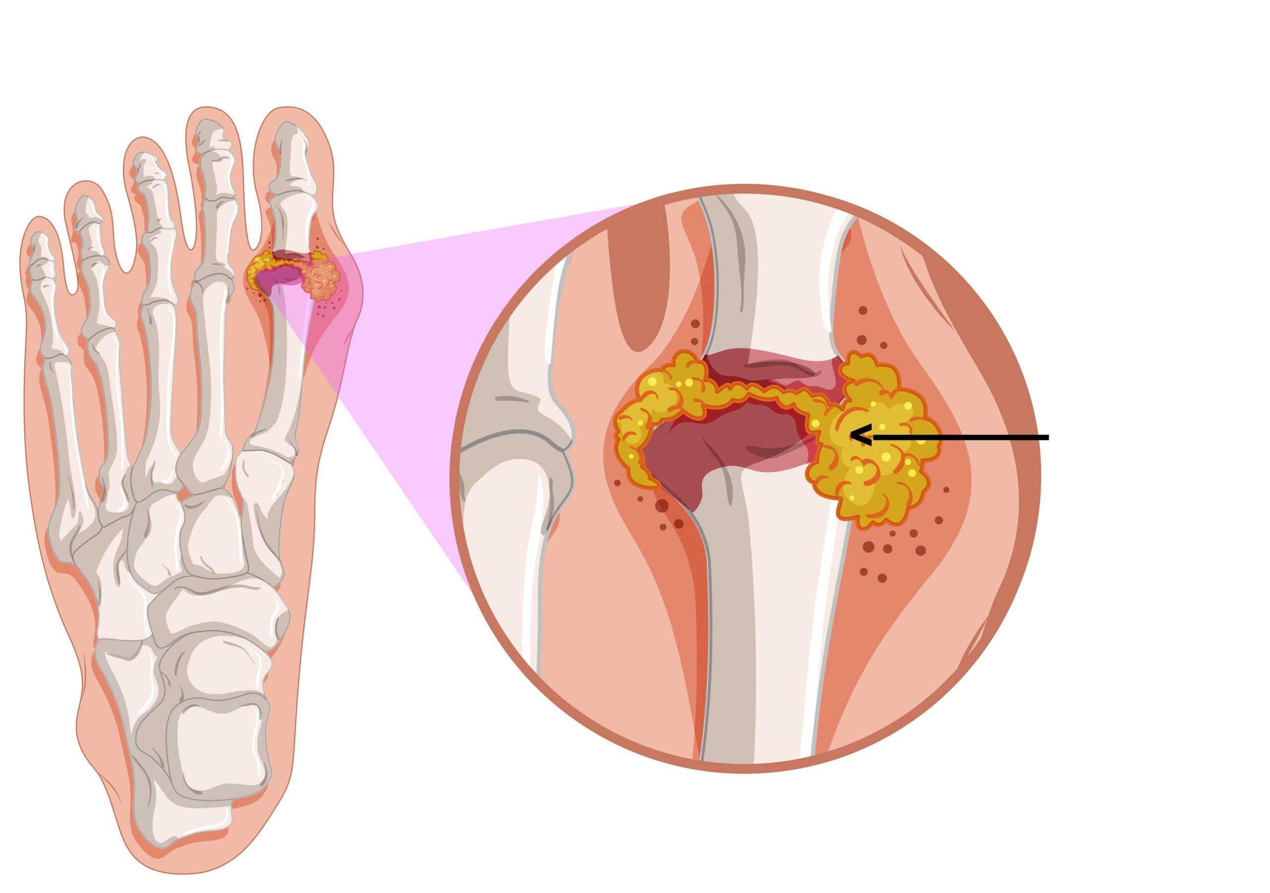 articulația genunchiului drept doare