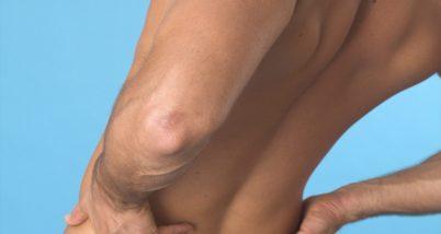 Dureri musculare - cauze