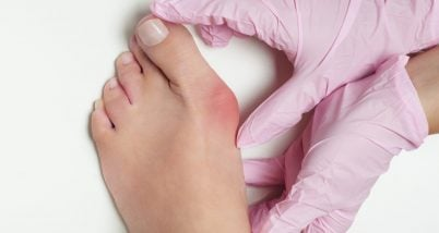 Incaltamintea ortopedica - metoda de preventie a monturilor