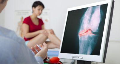 Incaltamintea ortopedica si tratarea gonartrozei