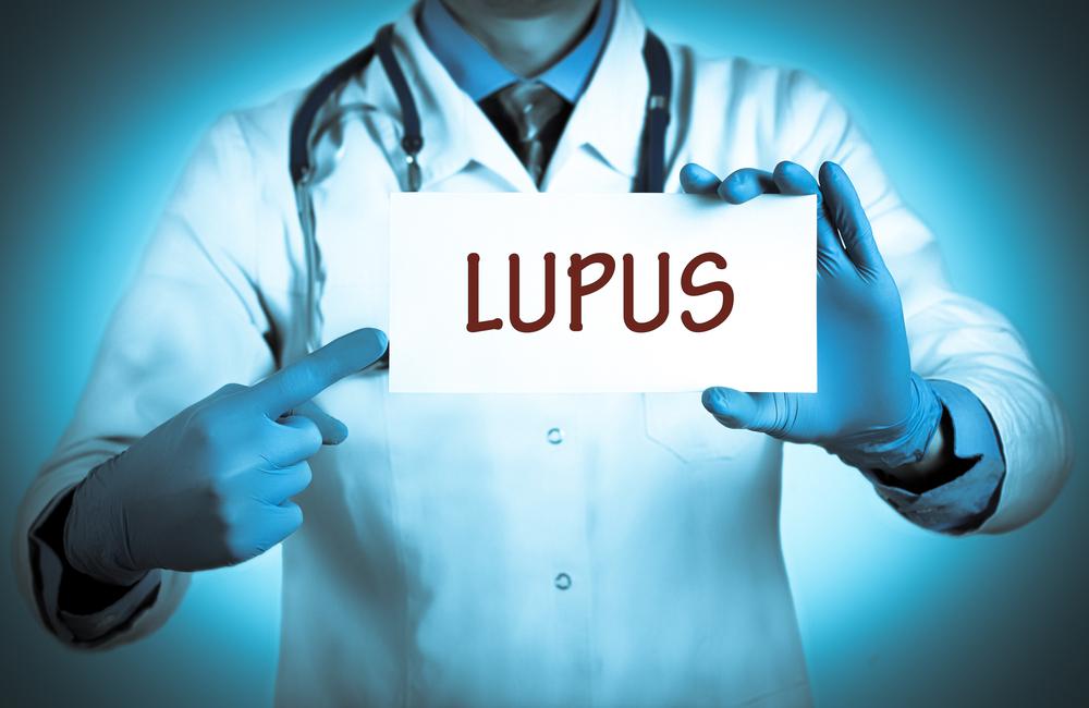 Lupus-eritematos-sistemic-cauze-simptome-tratament