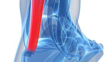 Afectiuni specifice tendonului lui Ahile