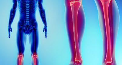 Leziunile specifice ligamentelor genunchiului