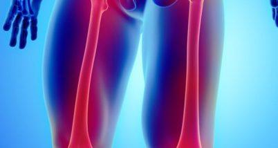 Ce este fractura de femur si ce tratament se impune?